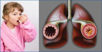 Аллергический бронхит лечение антибиотиками