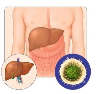 Хронических заболеваний печени